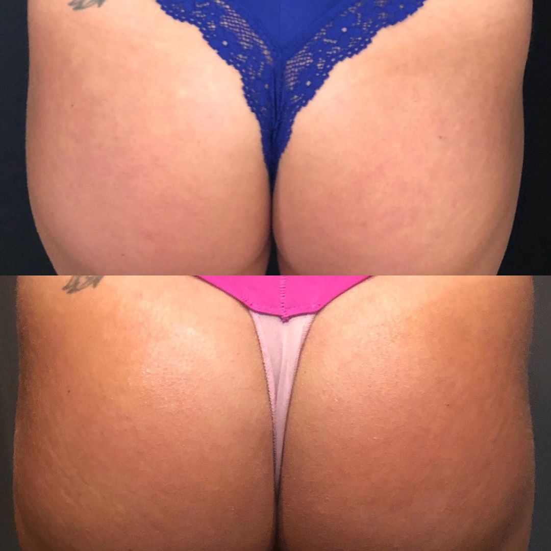 Sculptra | Butt Before & After Images
